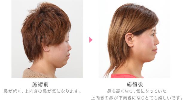 鼻・顎_vol41_2