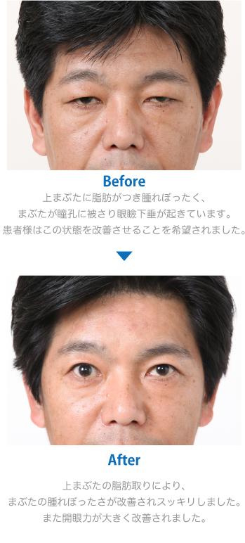 取り ない 意味 脂肪 瞼 品川美容外科・1日脂肪取り(顔)の口コミ!何cc打てば痩せる?