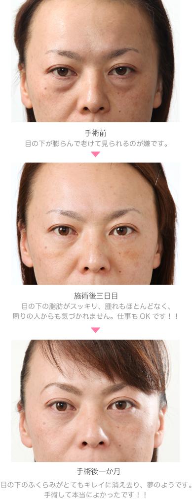 No42_縦画像