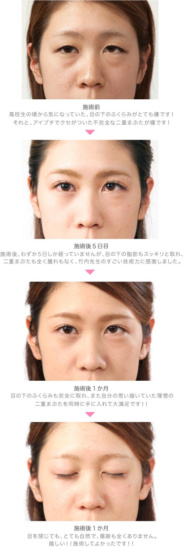 No49_顔のアップ写真